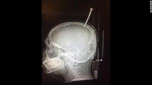 Radiografía de Darius Foreman
