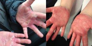 Algunos de las consecuencias de fabricar 'Slime' casero