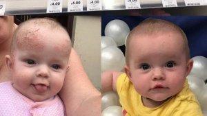 El antes y el después de los eczemas de una bebé tras utilizar la crema.