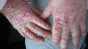 Imagen de archivo de unas manos con el síndrome de piel de mariposa