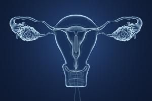 DIU hormonal: ventajas e inconvenientes de este método anticonceptivo