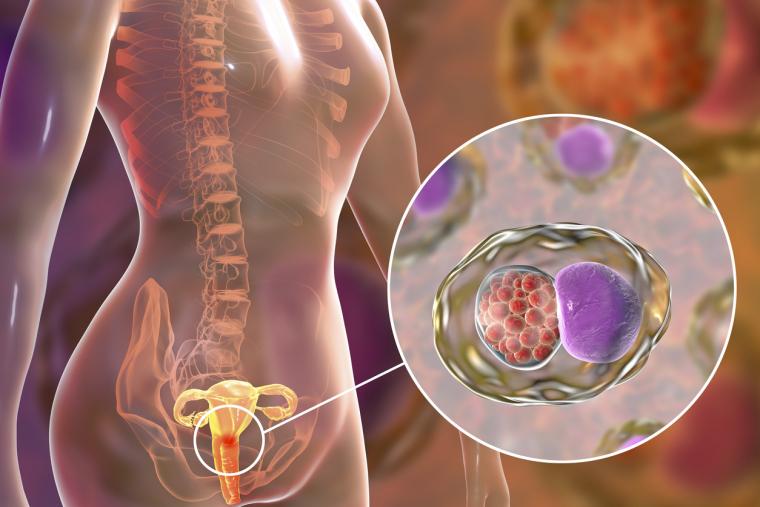 Clamidia y la infertilidad: descubre cómo afecta esta ETS en la fertilidad