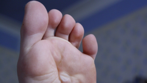 What are blisters? How to prevent and treat them.