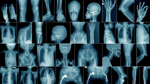 The human skeleton has 5 different types of bones according to their shape.