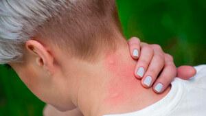 La OCU recomienda un uso moderado de repelentes e insecticidas