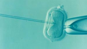 El tratamiento de la esterilidad y de la infertilidad depende de su causa.