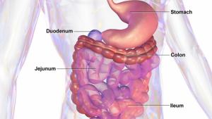 Síntomas, causas, tratamiento y prevención del cáncer de colon.