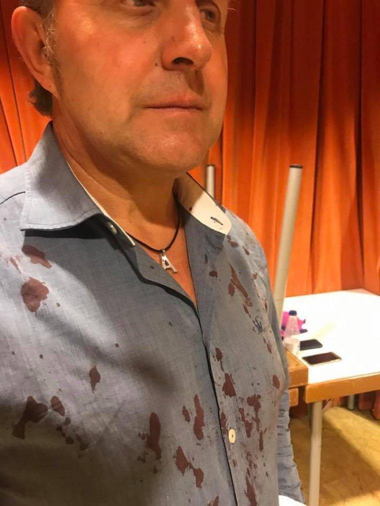 El tinent d'alcalde Jaume Bernis, amb sang a la camisa.