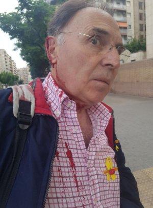 Josep Aldabó, després de l'agressió per portar un llaç groc a la camisa.