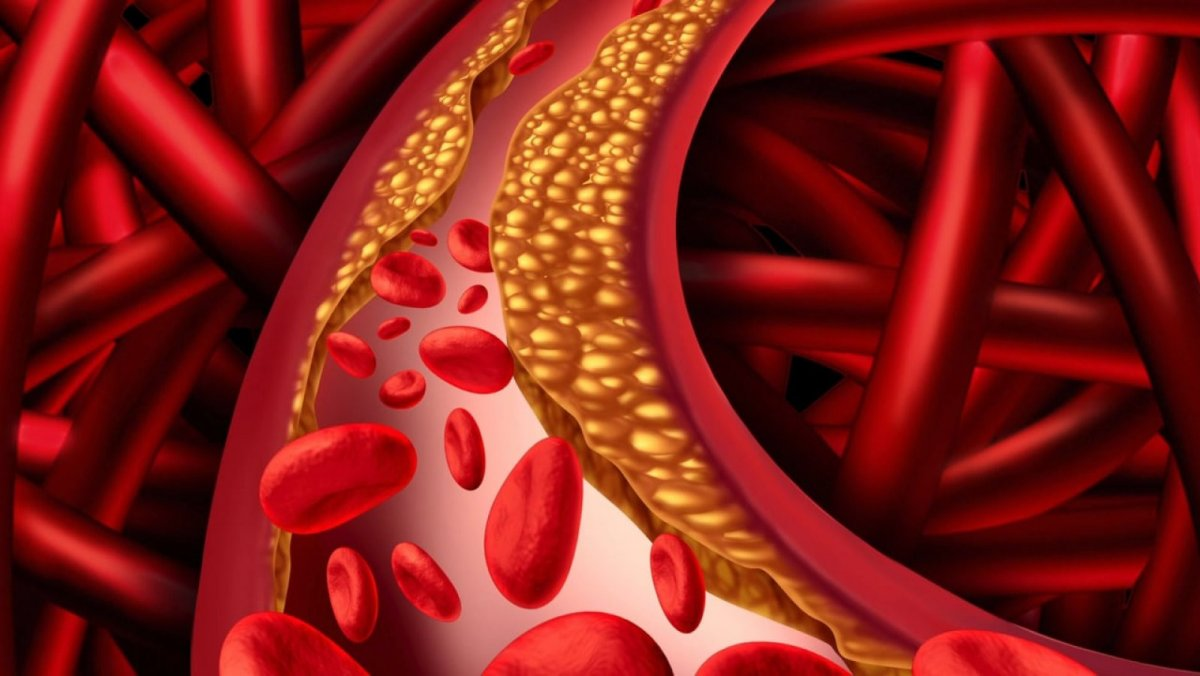 Mejores ideas en que consiste la hipertensión